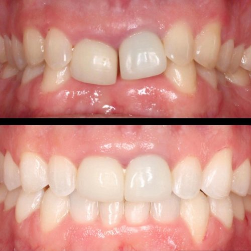 Carousel post from airdriespringsdental.